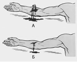Как отличить венозное кровотечение от артериального